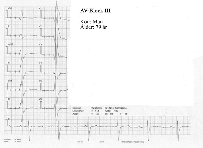 bifascikulärt block behandling