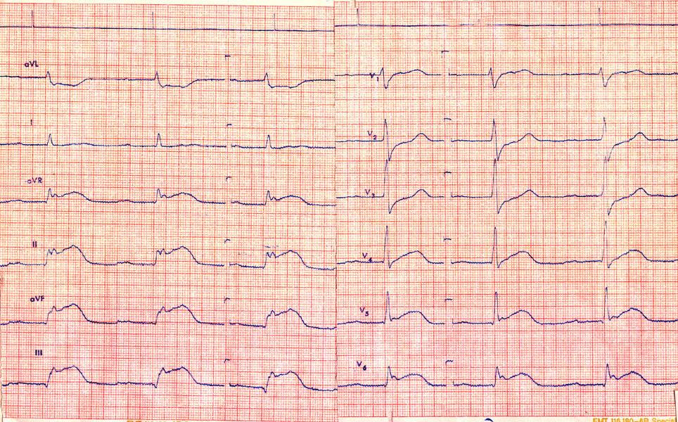 Page on angina pectoris