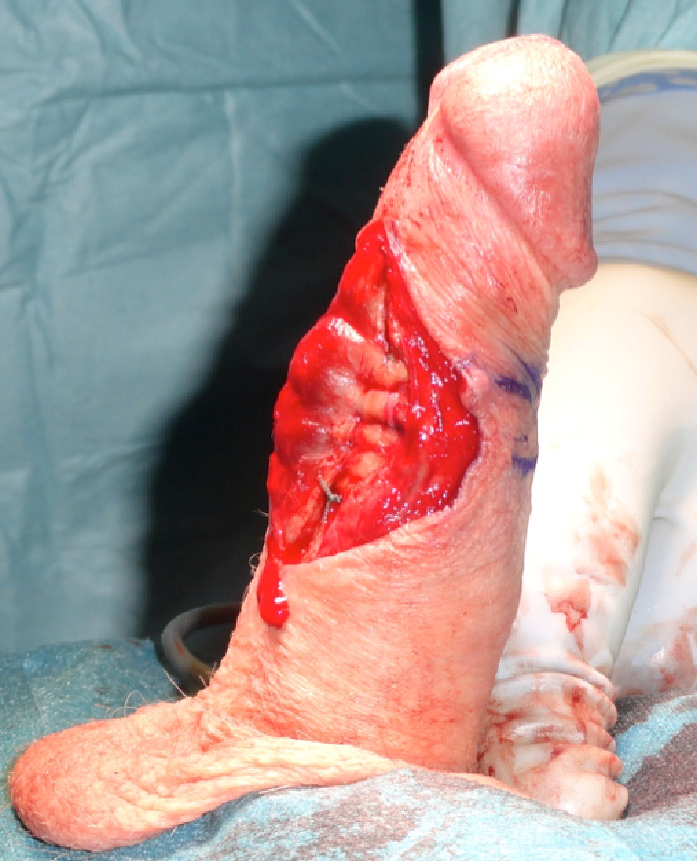 fysiologi af penile erektion