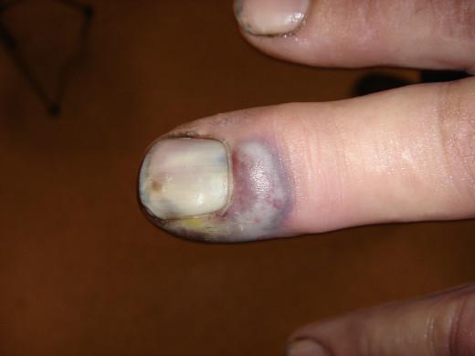 infektion i sår