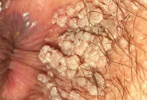 Herpes På Rumpan