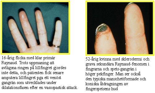 vita fingrar orsak