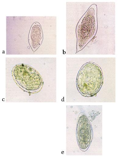 kontroll schistosomiasis