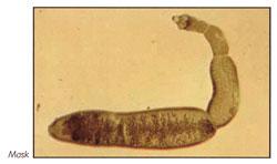 parasiter i tarmen