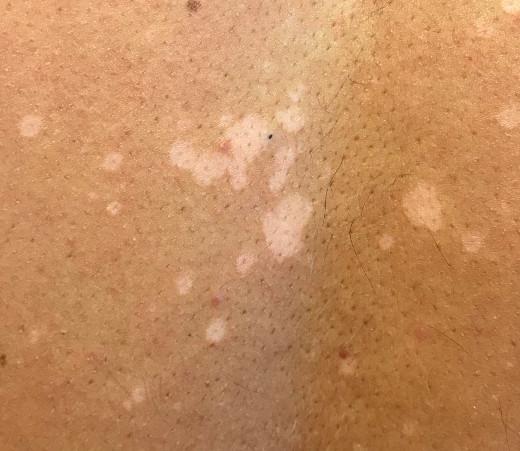 pityriasis versicolor behandling