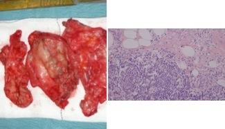 ALVAL-reaktion och basalmembranshyperplasi