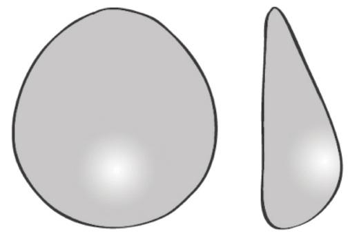Bröstförstoring Principskiss droppformat implantat