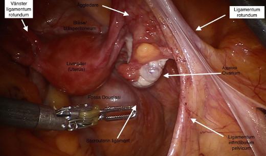 Fig1hysterektomi.JPG