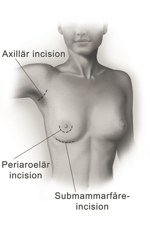 Bröstförstoring Incisioner