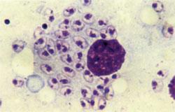 Leishmaniasis-tropica,-amas.jpg