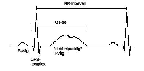 Långt QT-syndrom bild 2