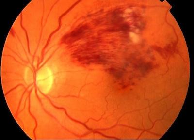 Retinal_ocklusion2.jpg
