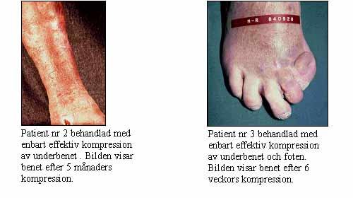 Venös_insuf2.jpg
