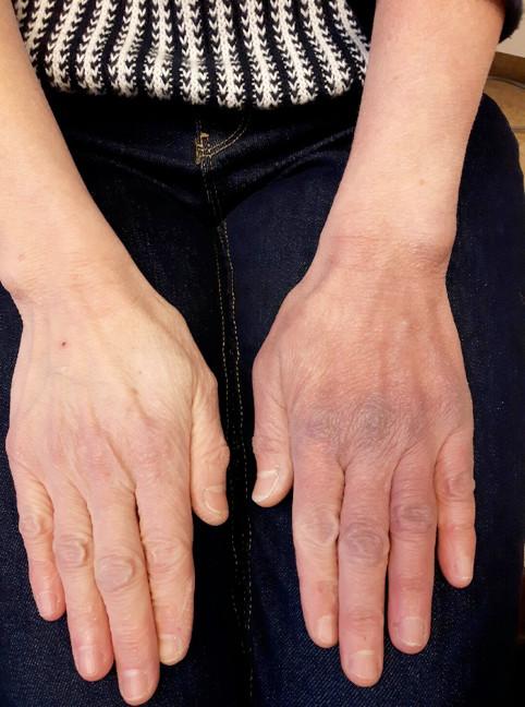 Acrodermatit på hand
