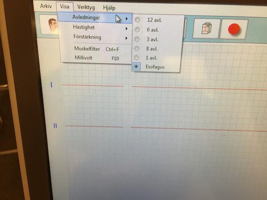 Esofagusregistrering E-EKG