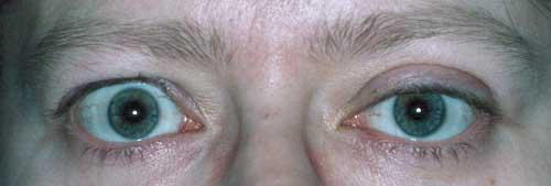 endokrinoftalmo2.jpg