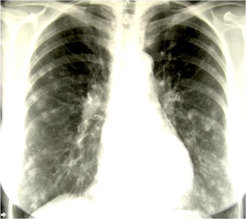 Akut pulmonell histoplasmos dag 13