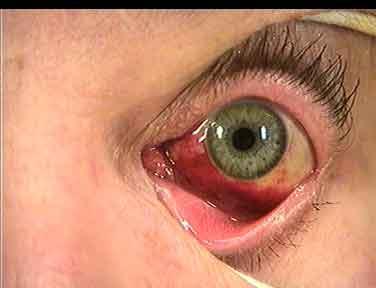 blödning under ögat