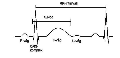 Långt QT-syndrom bild 1