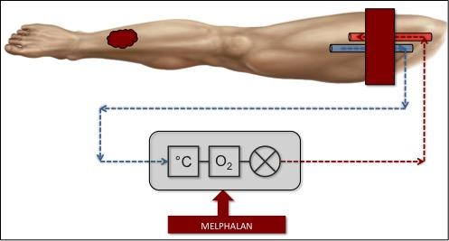 Schematisk bild över ILP