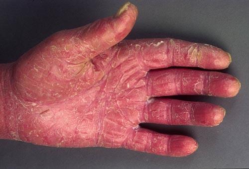 Sezarýs syndrom - fot