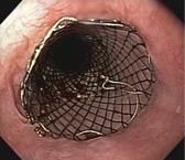 stent2.jpg