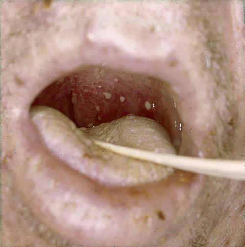Halsen herpes i Herpes ont