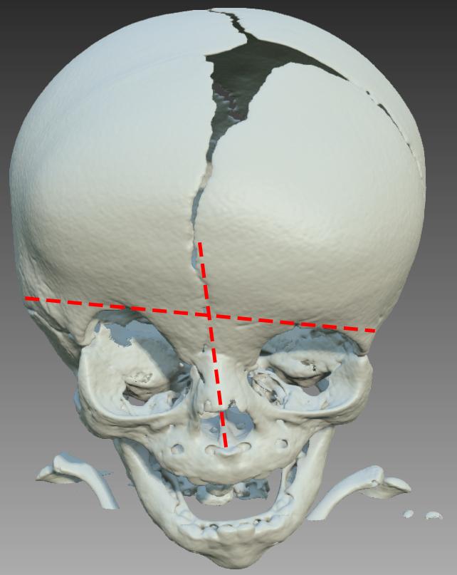 Bild_3_-_Unilateral_coronaria.jpg